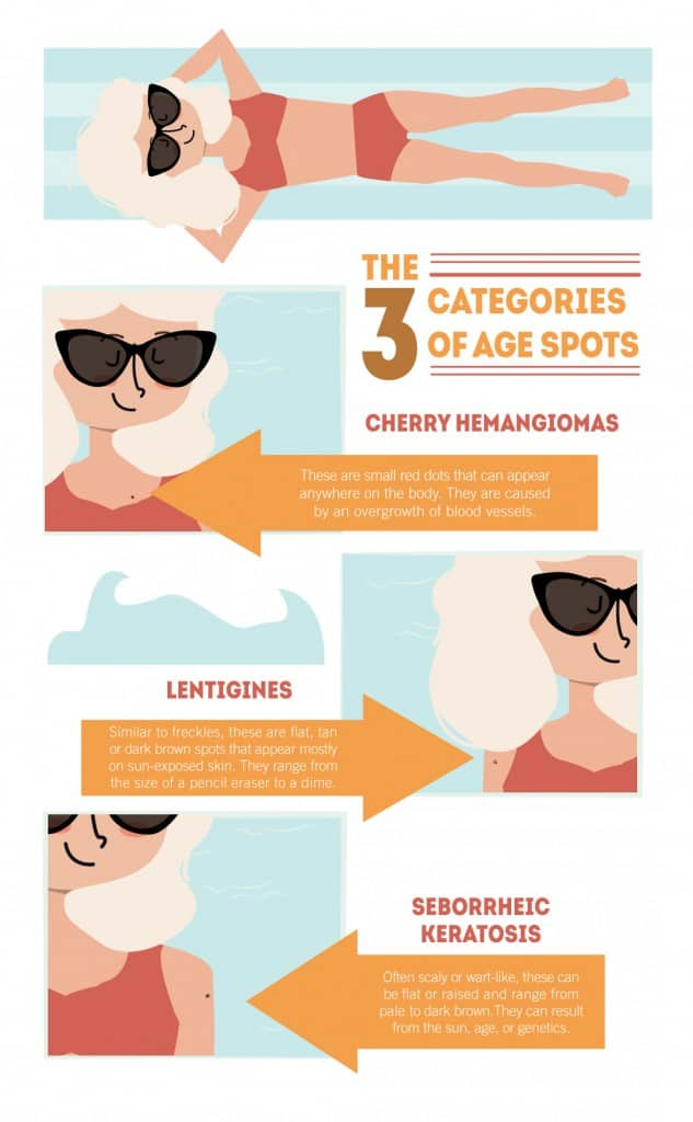 The 3 Categories of Age Spots