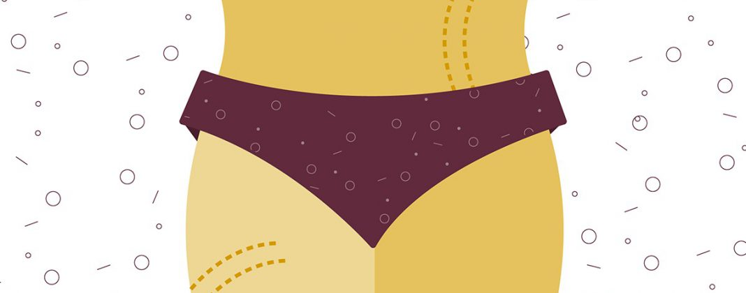 Can You Really Prevent or Reduce the Appearance of Stretch Marks?