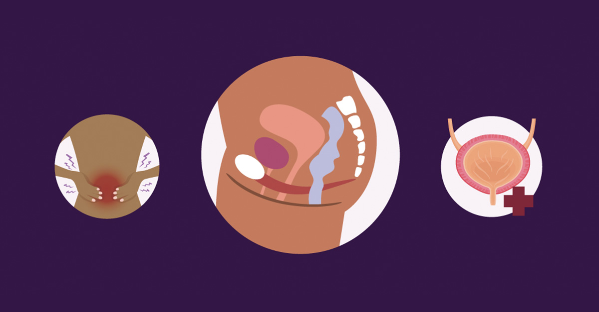 How the Pelvic Floor Works (and When You May Need Help to Relax or Strengthen It)
